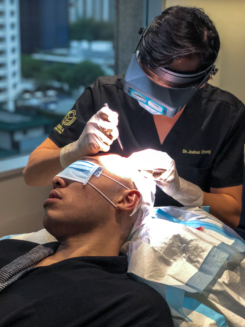 FUE Hair Transplant Review: Terra Medical Clinic Singapore - Yina Goes